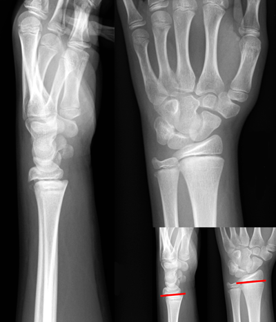 trip-injury-x-ray